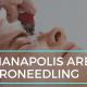 Indianapolis Area Microneedling